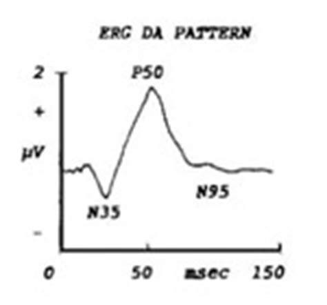 pattern erg p50 patologie del nervo ottico e patologie delle vie ottiche