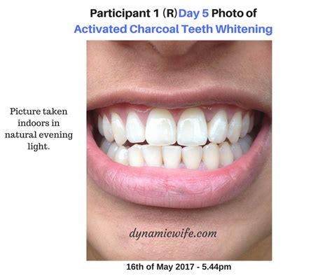 activated charcoal teeth whitening experiment  real