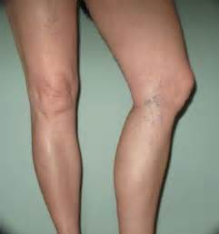 Unwanted veins and blood vessels may appear anywhere on the body