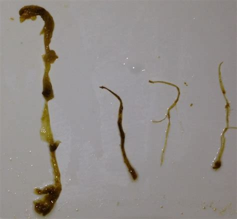 Clear Strings In Stool by Day 11 Can Anyone Help Identify This Parasite From The