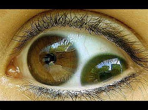 imagenes ojos raros el ojo mas raro y extra 209 o del mundo strange eyes youtube