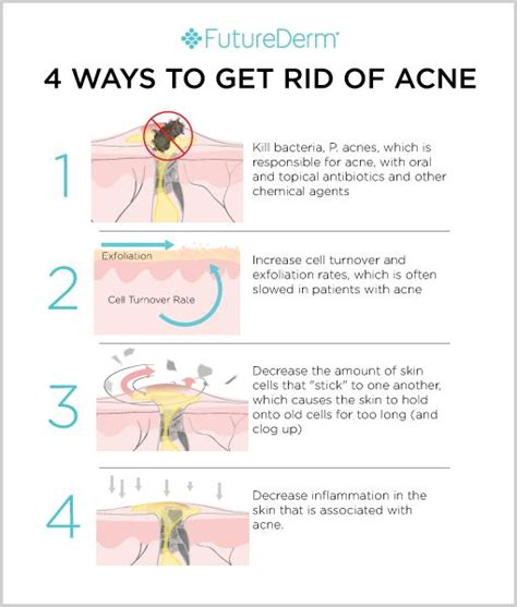 15 Top Foods To Get Rid Of Acne by 69 Best Images About Acne Infografiche Dal Web On