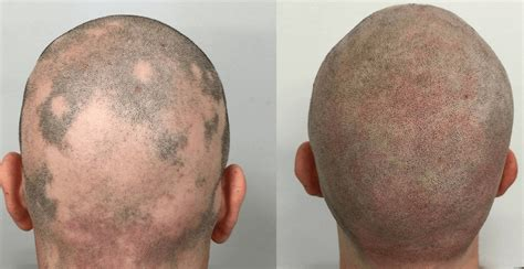 scalp micropigmentation for african american women in florida scalp micropigmentation best scalp micropigmentation