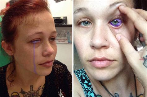 eye tattoo side effects canadian woman could go blind after getting her eyeball