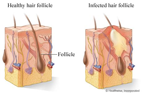 folliculitis of michigan health system