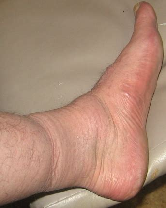 what to do for swollen feet after c section legs travel accessory travel legs maintenance using