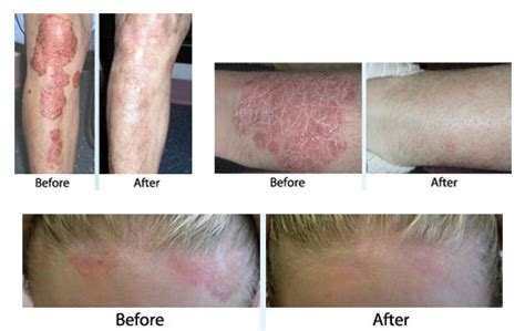 conair light therapy for psoriasis psoriasis xtrac laser alliance dermatology and mohs center