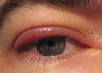 10 frequently asked questions about blepharitis | beauty