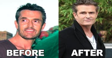 Rupert Goes Back To Plastic Bags by Cosmetic Surgery Photos Rupert Everett Plastic