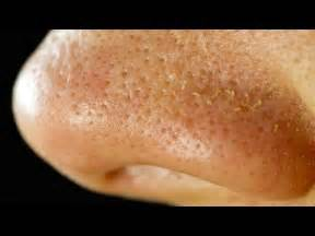 How To Get Bed Bugs Off Your Body There Are Tiny Mites Living On Your Face Youtube