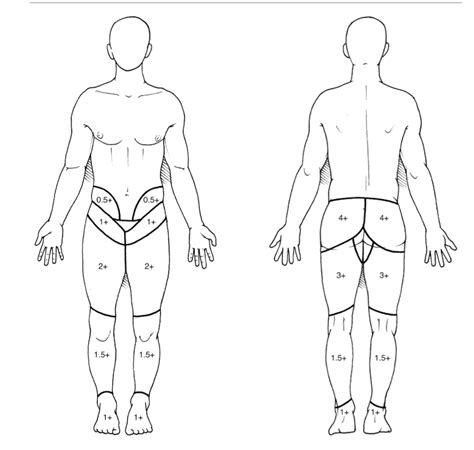radiation pattern adalah body diagram for pain gallery how to guide and refrence
