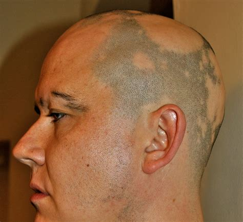haircuts for those with alopecia hairstyles with with alopecia traction alopecia the