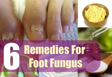6 most effective home remedies for foot fungus