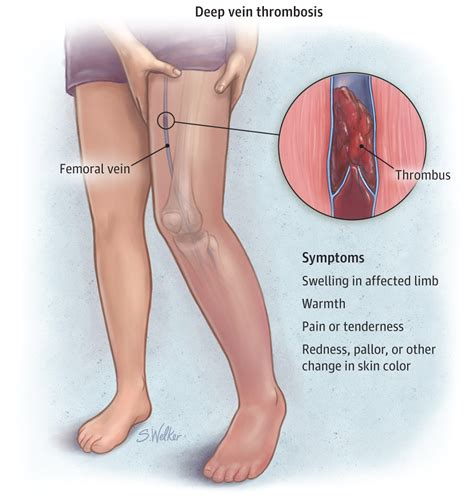 color of blood in veins vein thrombosis venous thromboembolism jama