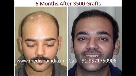 hair transplant india delhi mumbai youtube best economical hair transplant in india by dr suneet