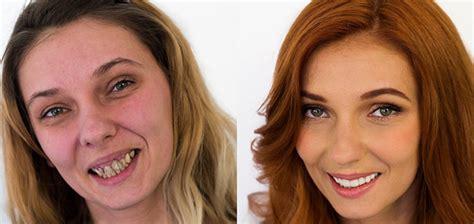 make over a complete teeth makeover dental center štimac