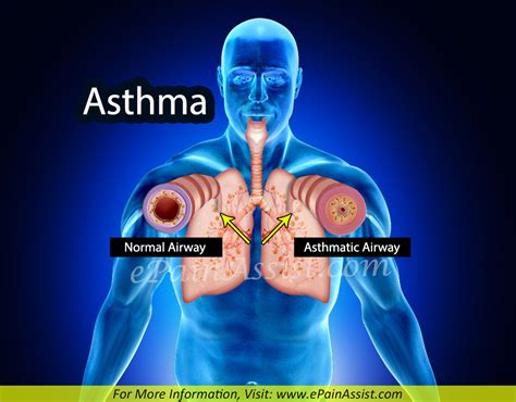 and treatment asthma treatment home remedies prevention symptoms