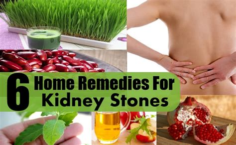 6 effective home remedies for kidney stones diy health