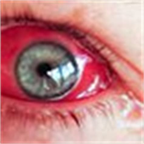Keladi Salur Merah resepi puding keladi n sakit mata cupie corner