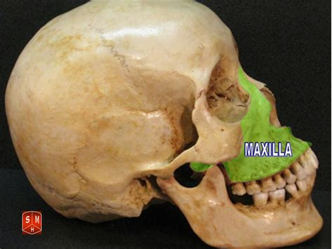 creatine jawline what does a retruded maxilla look like