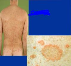 christmas tree virus rash what are some exles of creatures that can create burrows