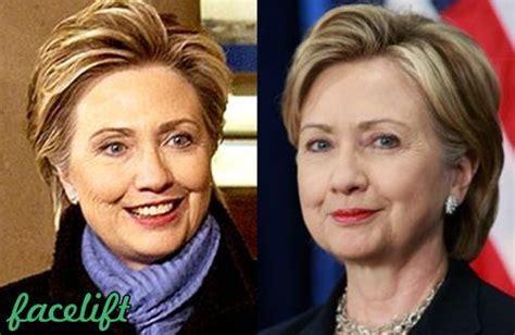 hillary clinton facelift 2014 best 25 hillary clinton plastic surgery ideas on pinterest