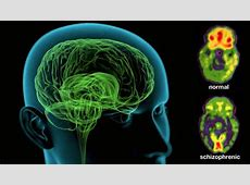 Cannabidiol (CBD) May Preserve Memory In Schizophrenia Schizophrenia Positive Symptoms
