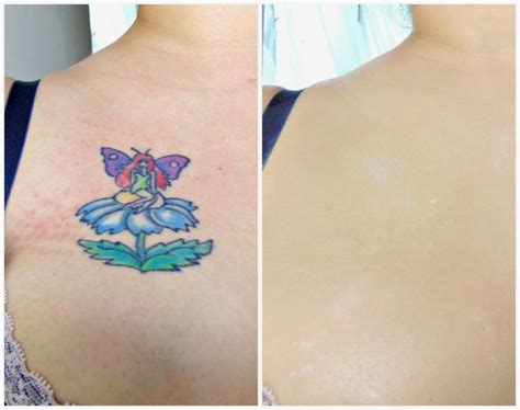 tattoo hide cream 17 best images about skin camouflage before and after on