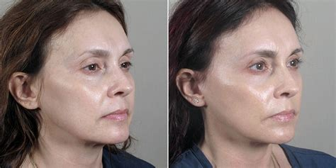 Is A Mini Lift A Facelift Alternative by Treatments For Aging Center For Plastic