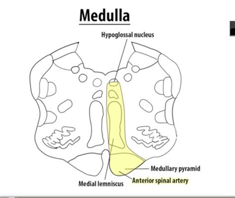 Medulla Cross Section by 08 Brain Stem Cross Section At Ross School Of