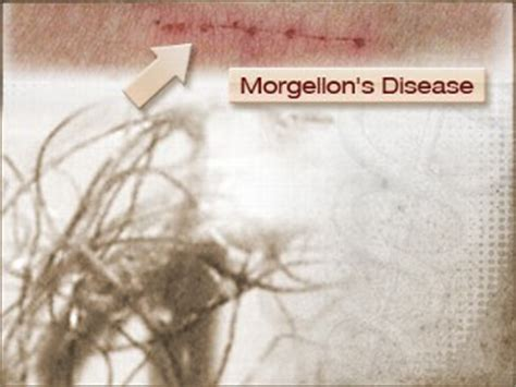 how you get morgellons disease you ve got what curious conditions debated diagnoses