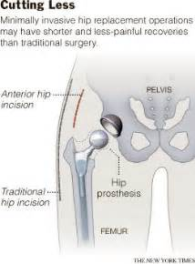 Hip Replacement Surgery Recovery Time Stairs by Less Invasive Hip Surgery That Speeds Recovery The New