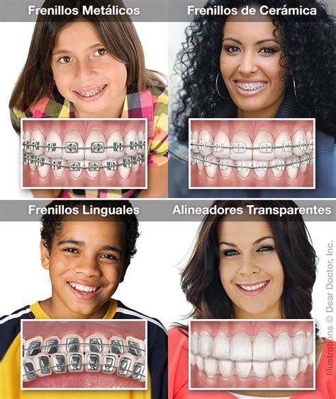 bonekinha de porcelana o beijo de cada signo ortodoncia general and cosmetic dentist