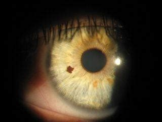 what causes a dark spot on the iris of my eye? quora