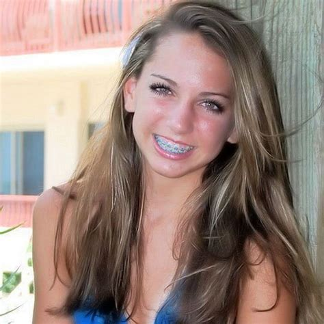young teen girl face with braces 1000 images about braces on pinterest ceramic braces