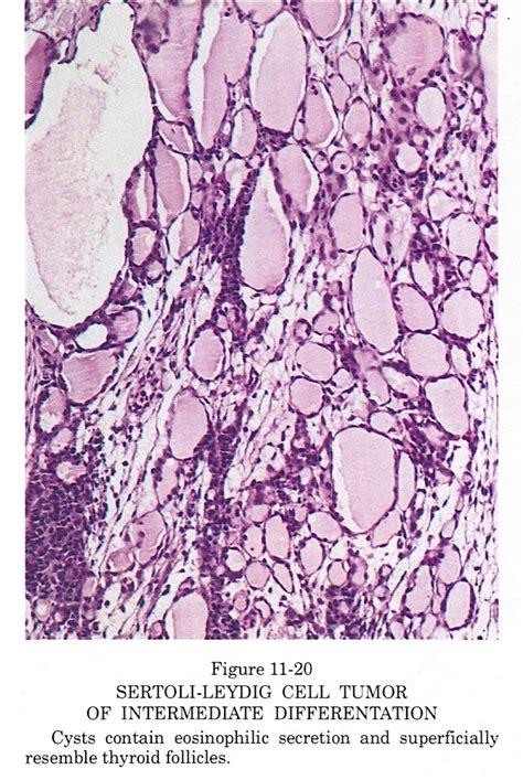 Sertoli Cell Only Pathology Outlines by Pathology Outlines Sertoli Leydig Tumor