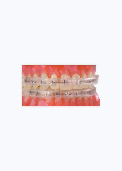 comfort covers for braces comfort covers pack of 10 db orthodontics limited