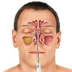 new sinuplasty surgery uses sinus balloon to treat chronic
