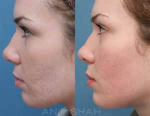 acne scars pictures plastic surgery chicago il
