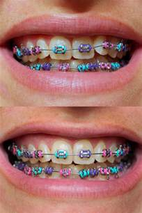 braces color 1000 ideas about braces colors on braces