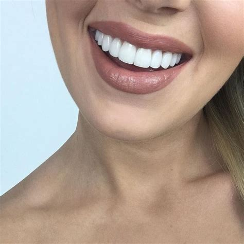 has there ever been a case of someone hacking their 25 best ideas about porcelain veneers on pinterest