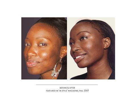 African American Skin Disorders Fort Lauderdale | face lift guide broward plastic surgery