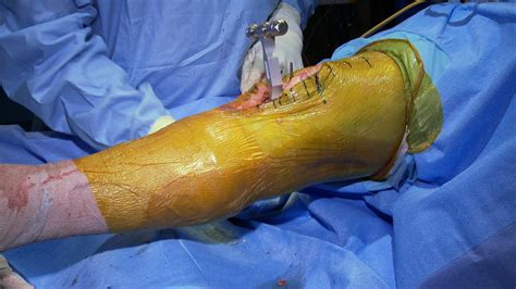 knee surgery knee surgery images