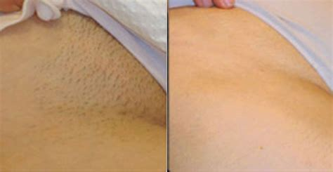 full brazilian wax photos before and after brazilian wax pictures before and after best naked ladies