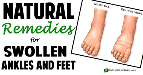 how to treat swollen feet after c section image gallery puffy ankles