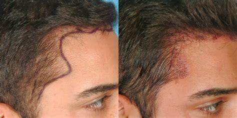 hair transplant in australia hair transplant cost in hair transplant price hair transplant cost in the uk