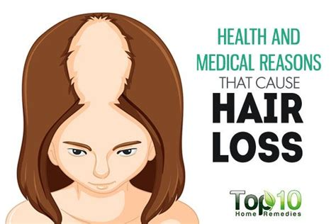 Can Showers Cause Hair Loss by 1000 Ideas About Losing Hair On Hair Loss
