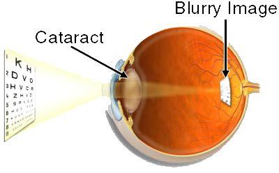 cataracts scher&ward