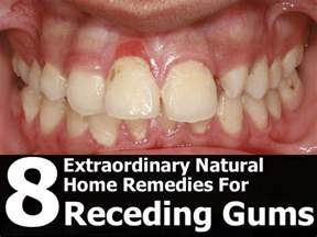 gums pulling away from teeth home remedy receding gum line car interior design