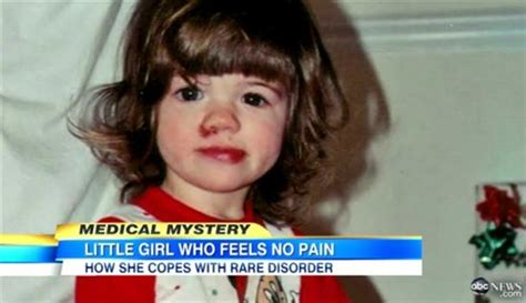 ashlyn blocker the girl who feels no pain nytimes amazing people who can t feel pain